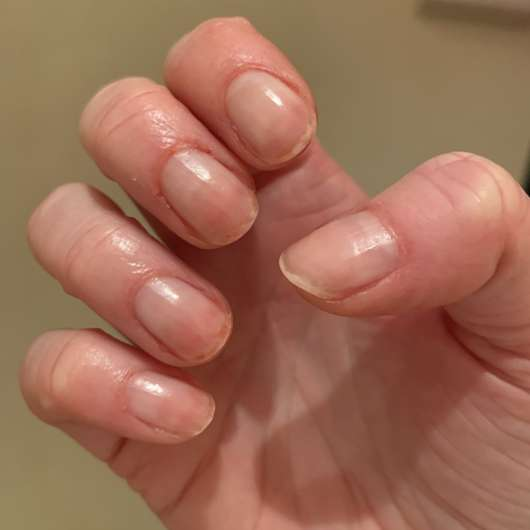 "Fingernägel nach der Anwendung des essence Repair Nail Oil ""Nails & Cuticles Nourisher"""