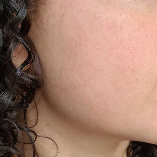 Haut zu Testbeginn - ISANA Aktiv Serum Hyaluron Triple