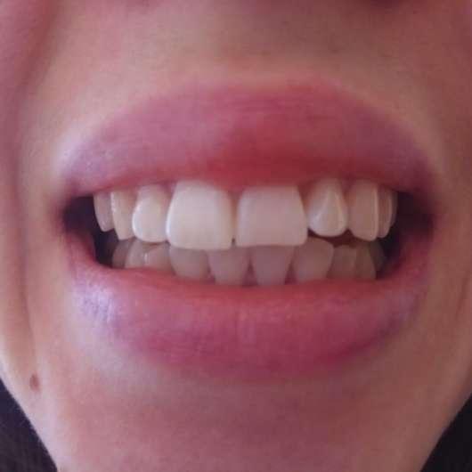 Zähne zu Testbeginn - MARA EXPERT Aktivkohle Intensiv Zahnpflege-Jelly