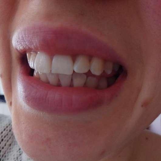 Zähne nach 4-wöchigem Test - MARA EXPERT Aktivkohle Intensiv Zahnpflege-Jelly