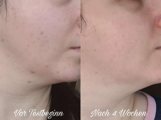 Haut vor/nach dem Test der Selfie Project Cannabis Mattierende Gesichtscreme