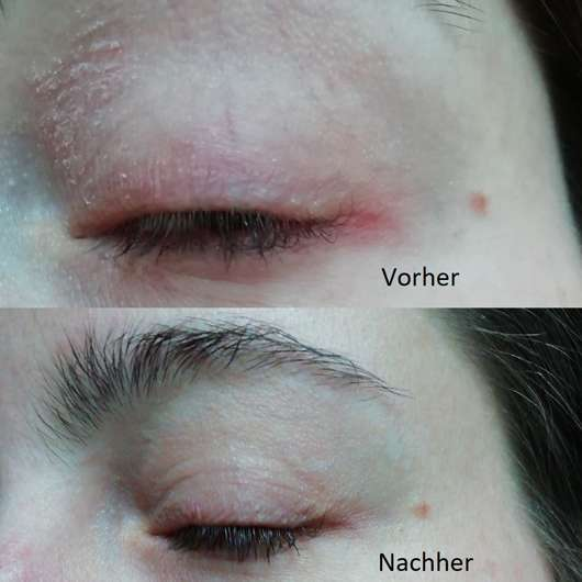 Auge zu Testbeginn // Auge nach Testende - Avène Tolérance Control Creme