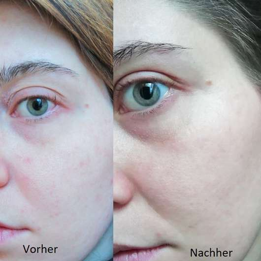 Avène Tolérance Control Creme - Haut zu Testbeginn // Haut nach Testende