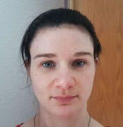 Selfie Project Cannabis Antibakterielles Tonikum - Haut zu Testbeginn