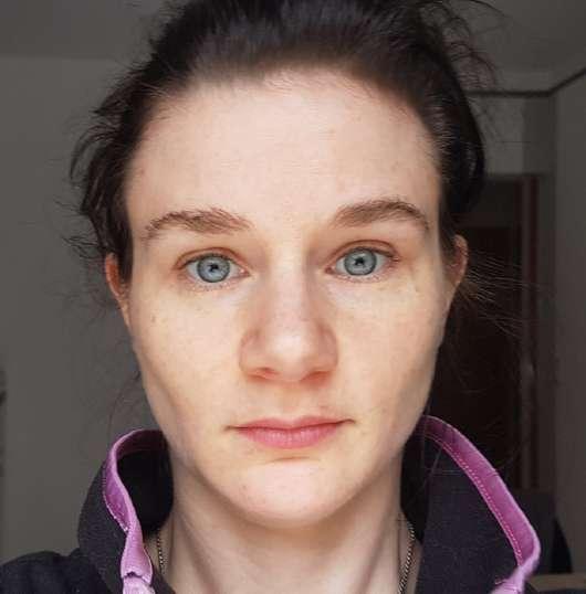 Selfie Project Cannabis Antibakterielles Tonikum - Haut nach 4-wöchigem Test