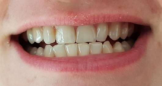 Zähne nach dem 4-wöchigen Test - MARA EXPERT Aktivkohle Intensiv Zahnpflege-Jelly