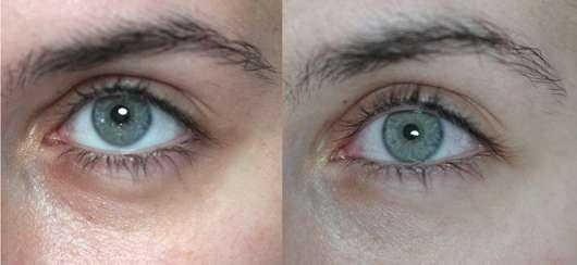 BIO:VÉGANE Bio Hanf Augenpflege - Links: Vor der Anwendung // Rechts: Nach vier Wochen