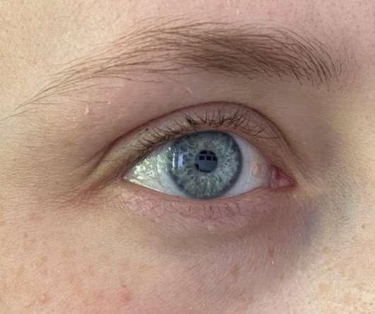 Haut zu Testbeginn - COXIR Black Snail Collagen Eye Cream