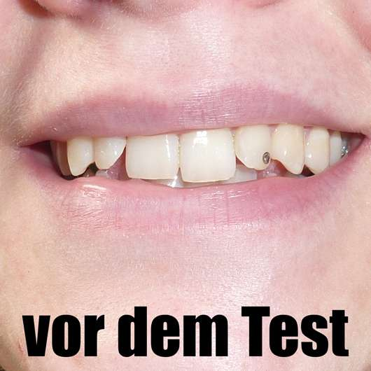 Zähne vor dem Test der MARA EXPERT Aktivkohle Plus Sensitiv Zahncreme