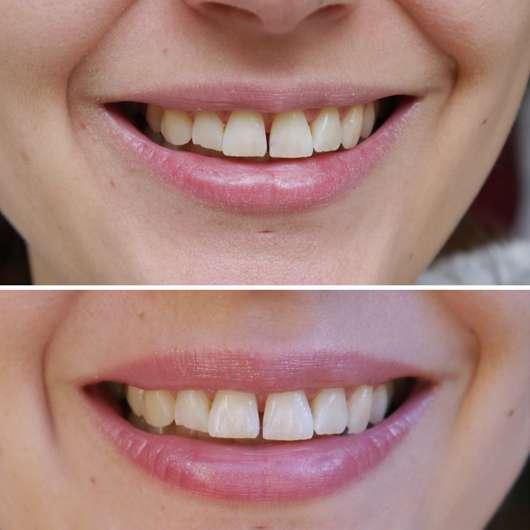 Zähne vor/nach dem Test des NATORAL Whitening-Sets
