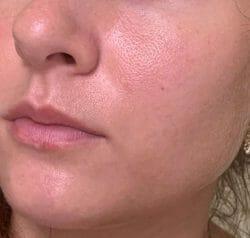 Haut zu Testbeginn - XYCOS Cica Green Cleanser