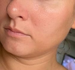 Haut nach 4-wöchigem Test - XYCOS Cica Green Cleanser