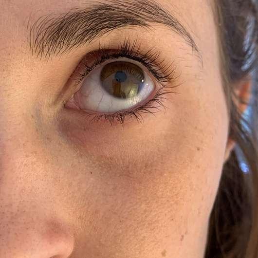 Augenpartie vor dem Test der Hollywood Skin Eye Patches Hyaluron Augenpatches