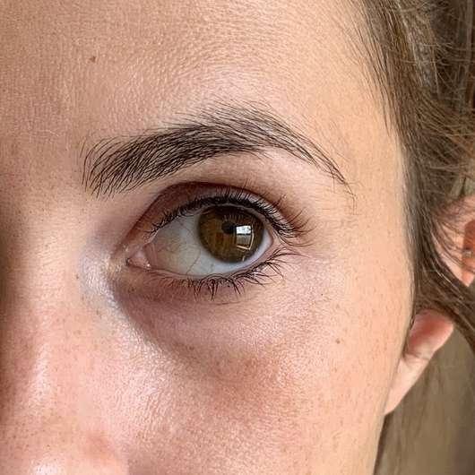 Augenpartie nach dem Test der Hollywood Skin Eye Patches Hyaluron Augenpatches