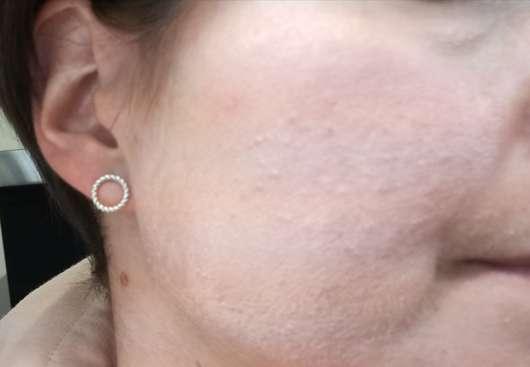 Haut mit Aknederm Salbe Neu