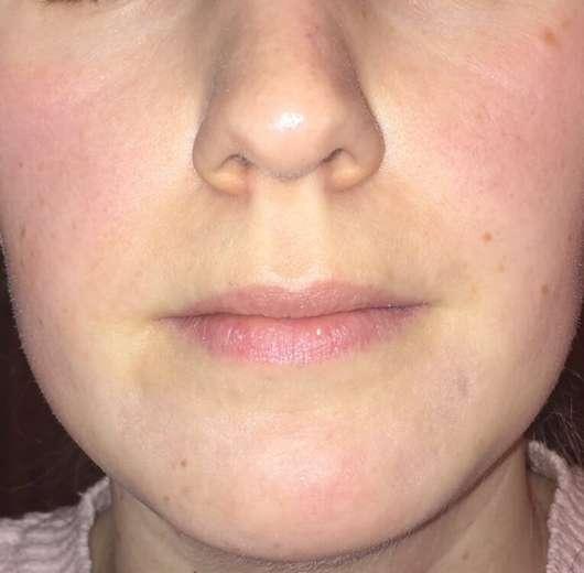 Klar's Porzellanerdeseife - Haut nach 4-wöchigem Test