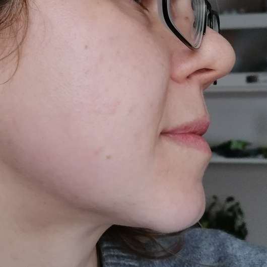 Haut zu Testbeginn - COSPHERA Hyaluron Performance Creme